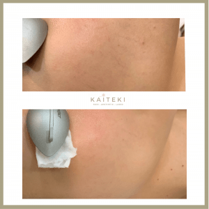 pro yellow laser before after