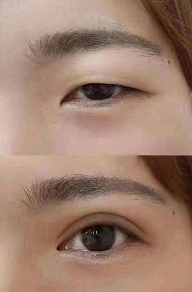 double eyelid suture