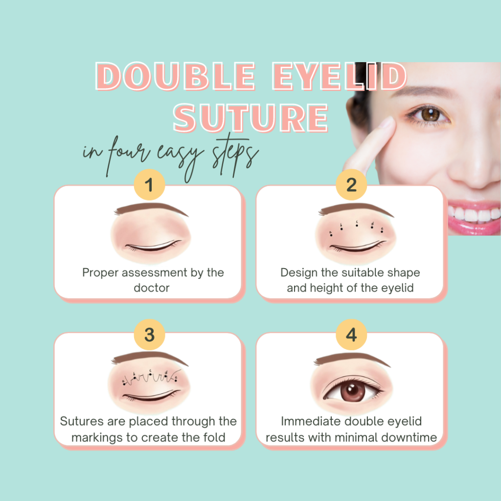 double eyelid suture steps