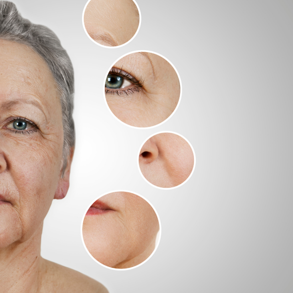 hyaluronic acid before after