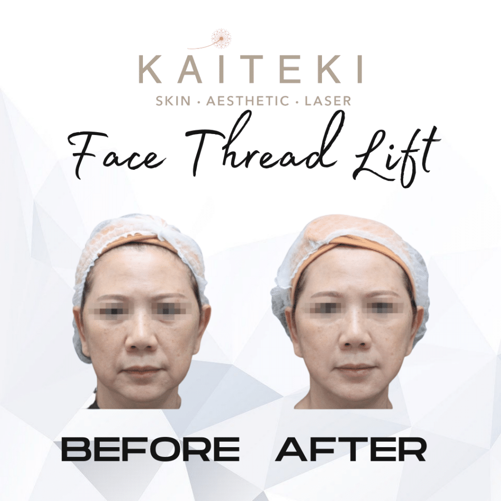 face thread lift before after